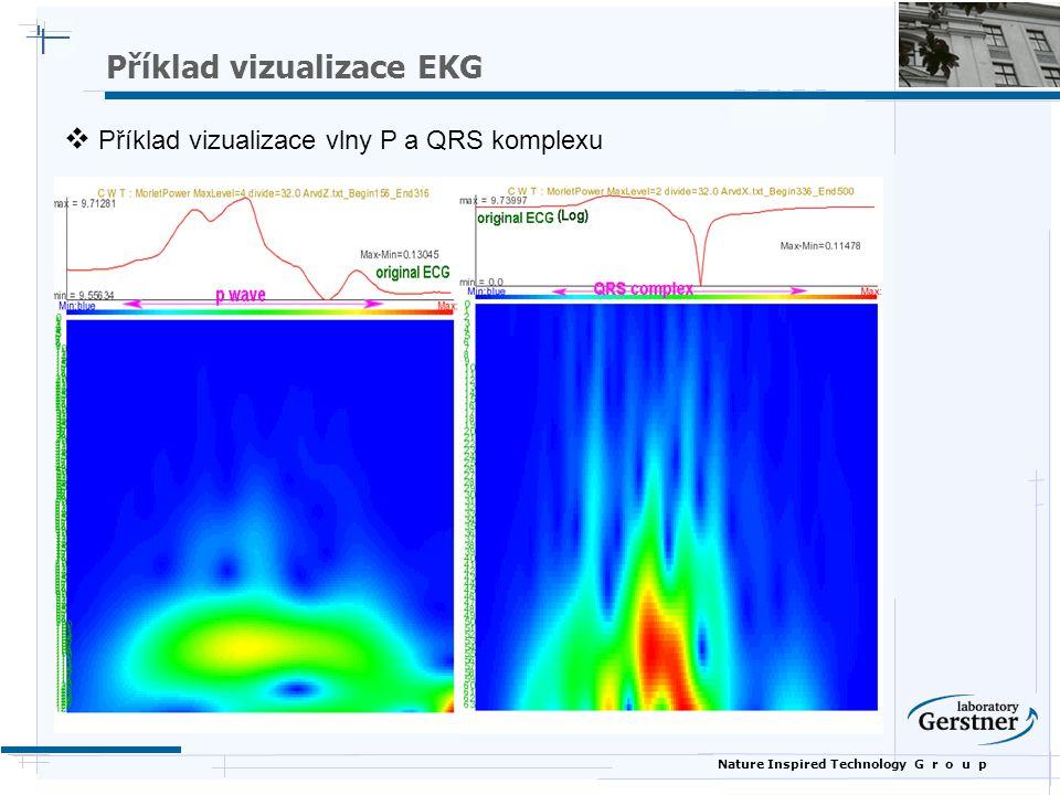 Nature Inspired Technology G r o u p  Příklad vizualizace vlny P a QRS komplexu Příklad vizualizace EKG