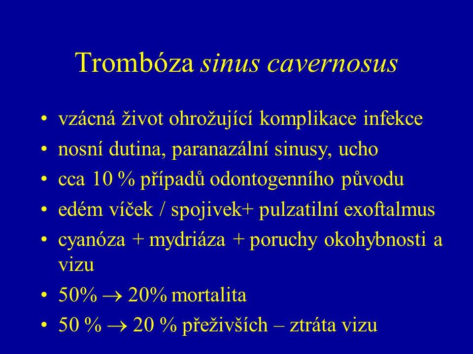 Trombóza sinus cavernosus vzácná život ohrožující komplikace infekce nosní dutina, paranazální sinusy, ucho cca 10 % případů odontogenního původu edém víček / spojivek+ pulzatilní exoftalmus cyanóza + mydriáza + poruchy okohybnosti a vizu 50%  20% mortalita 50 %  20 % přeživších – ztráta vizu