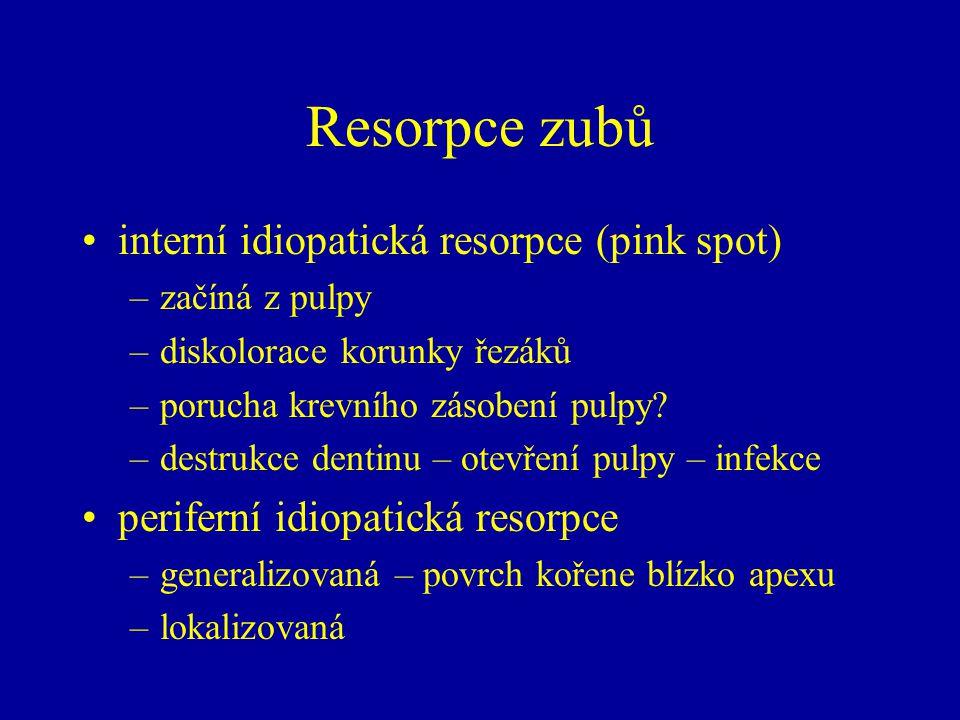Resorpce zubů interní idiopatická resorpce (pink spot) –začíná z pulpy –diskolorace korunky řezáků –porucha krevního zásobení pulpy.
