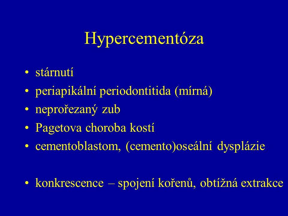 Hypercementóza stárnutí periapikální periodontitida (mírná) neprořezaný zub Pagetova choroba kostí cementoblastom, (cemento)oseální dysplázie konkrescence – spojení kořenů, obtížná extrakce
