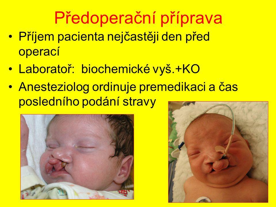 Předoperační příprava Příjem pacienta nejčastěji den před operací Laboratoř: biochemické vyš.+KO Anesteziolog ordinuje premedikaci a čas posledního po