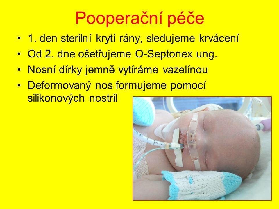 Pooperační péče 1. den sterilní krytí rány, sledujeme krvácení Od 2. dne ošetřujeme O-Septonex ung. Nosní dírky jemně vytíráme vazelínou Deformovaný n