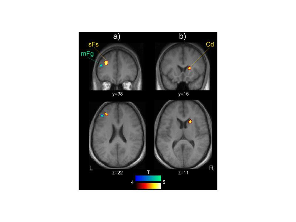 Funkční zobrazení mozku u pacienta s vrozeným extrémním hydrocefalem.