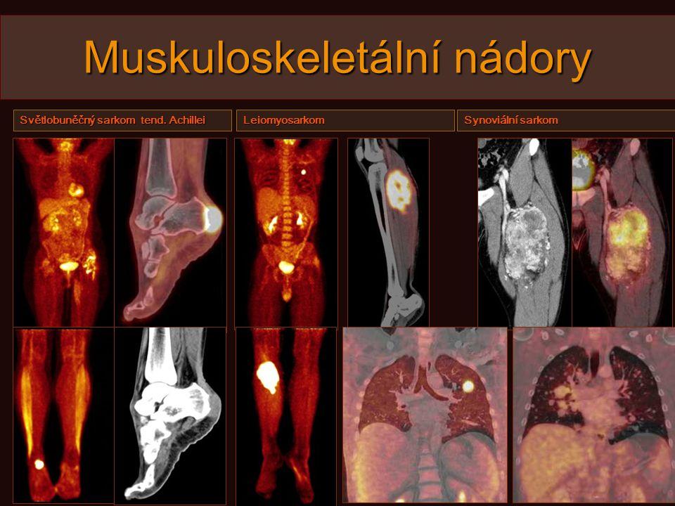 Muskuloskeletální nádory Světlobuněčný sarkom tend. Achillei Leiomyosarkom Synoviální sarkom