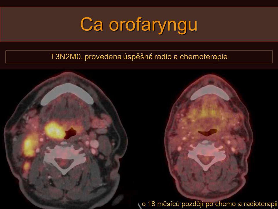 Ca orofaryngu T3N2M0, provedena úspěšná radio a chemoterapie o 18 měsíců později po chemo a radioterapii