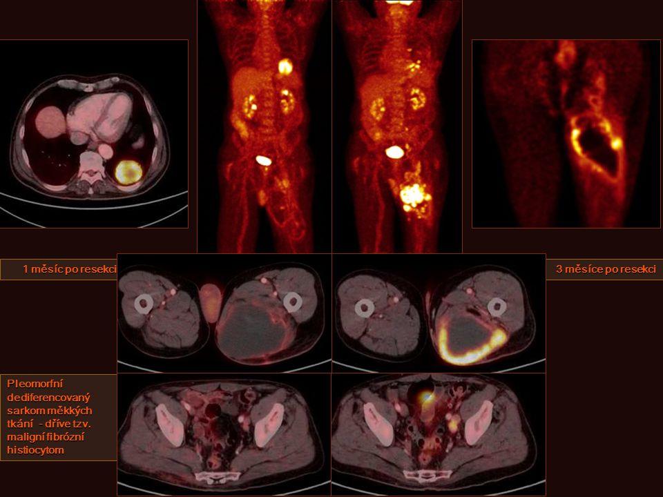 1 měsíc po resekci 3 měsíce po resekci Pleomorfní dediferencovaný sarkom měkkých tkání - dříve tzv.
