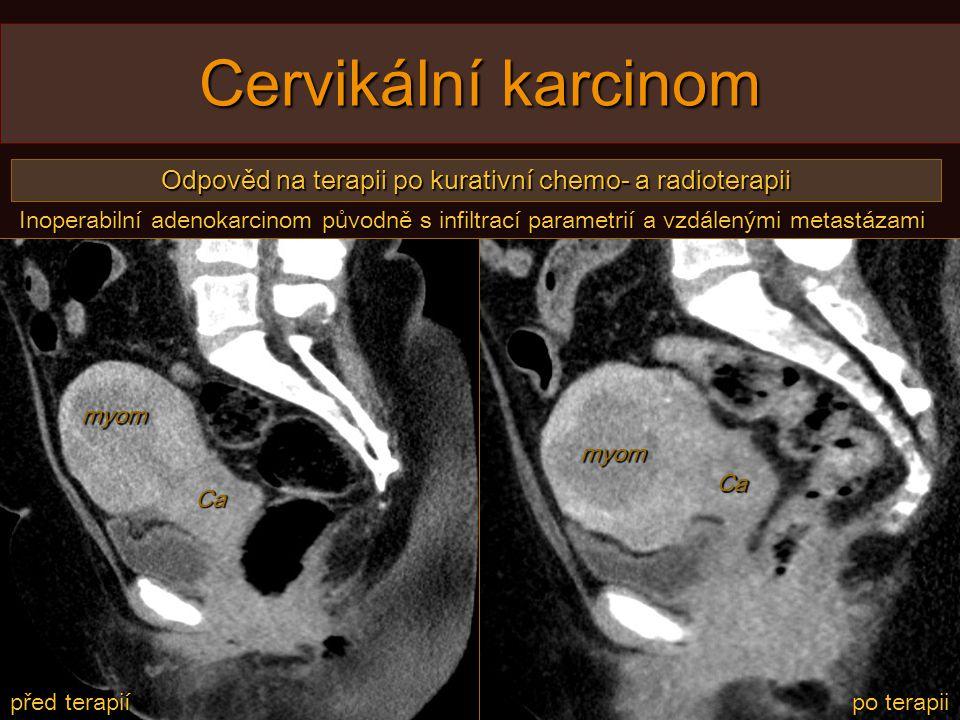 Cervikální karcinom Odpověd na terapii po kurativní chemo- a radioterapii před terapií po terapii myom myom Ca Ca Inoperabilní adenokarcinom původně s infiltrací parametrií a vzdálenými metastázami