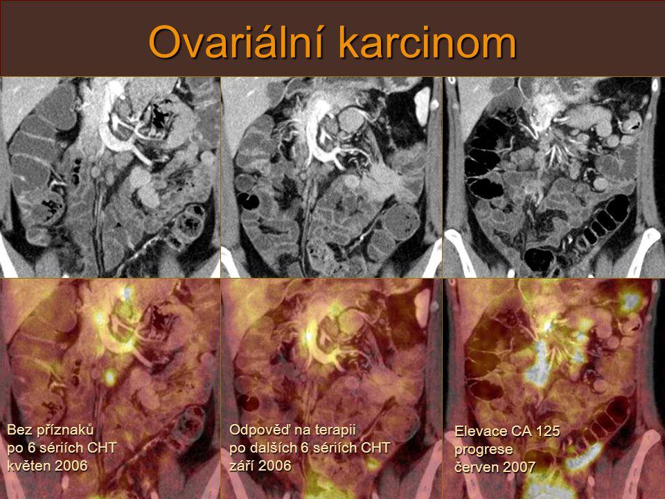 Serózně-papilární ovariální Ca, květen 2005 původně T3bN1M0 Ovariální karcinom Pozitivní nález může předcházet zvýšení nádorových markerů – CA 125, proto je PET/CT metoda vhodná k restagingu i u bezpříznakových nem.