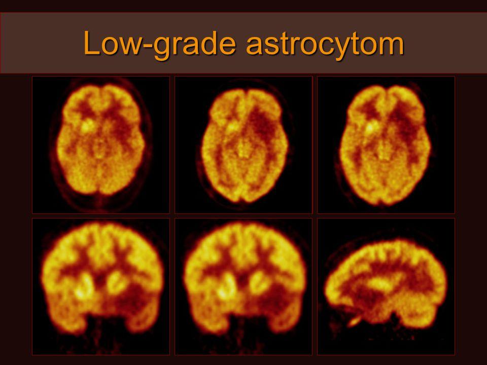 Low-grade astrocytom