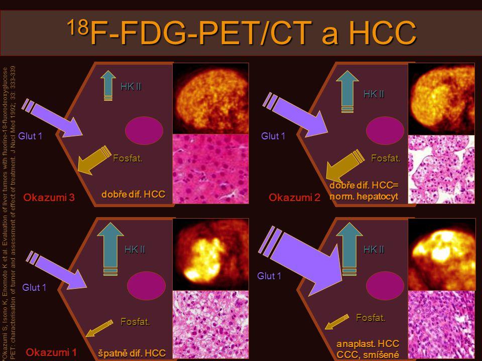 18 F-FDG-PET/CT a HCC dobře dif.HCC dobře dif. HCC= norm.