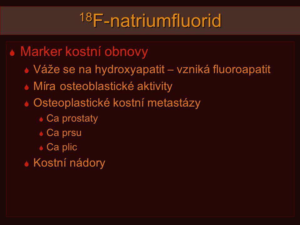 18 F-natriumfluorid  Marker kostní obnovy  Váže se na hydroxyapatit – vzniká fluoroapatit  Míra osteoblastické aktivity  Osteoplastické kostní metastázy  Ca prostaty  Ca prsu  Ca plic  Kostní nádory