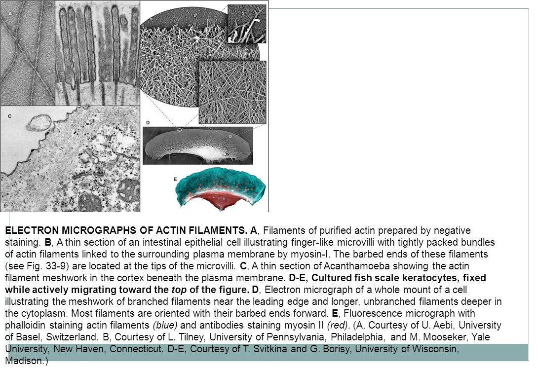 ELECTRON MICROGRAPHS OF ACTIN FILAMENTS.