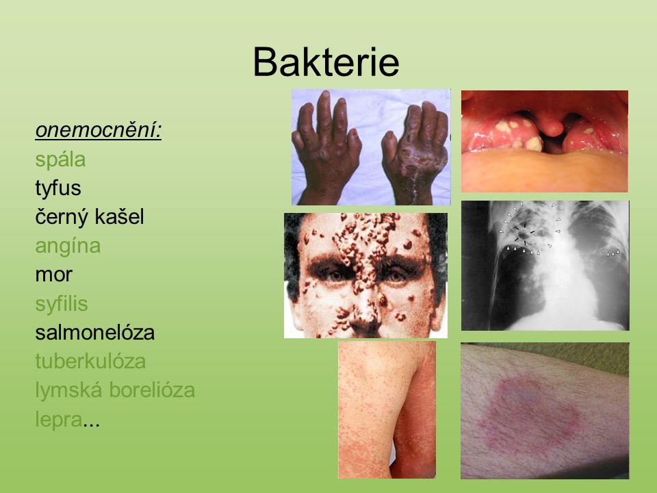 Zdroje: http://upload.wikimedia.org/ http://www.gorvin.mysteria.cz/ http://www.glerl.noaa.gov/ http://www.bio.mtu.edu/ http://media.novinky.cz/ http://media-2.web.britannica.com/ http://landarzt.files.wordpress.com/ http://www.lfhk.cuni.cz/ http://textbookofbacteriology.net/ http://louletania.blogs.sapo.pt/ http://www.tyden.cz/ Kvasničková, D.