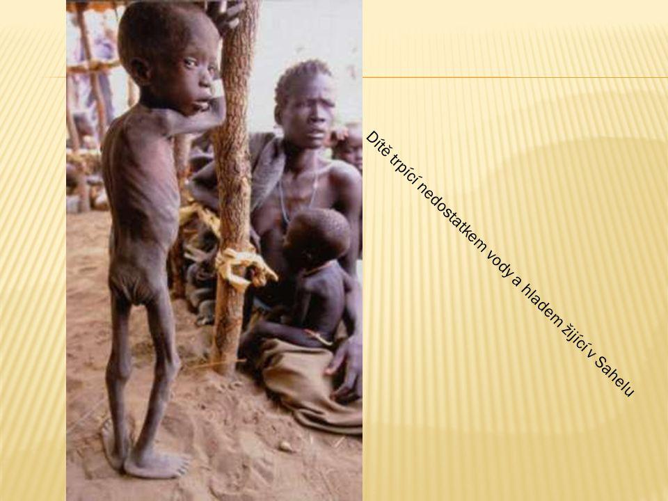 Dítě trpící nedostatkem vody a hladem žijící v Sahelu
