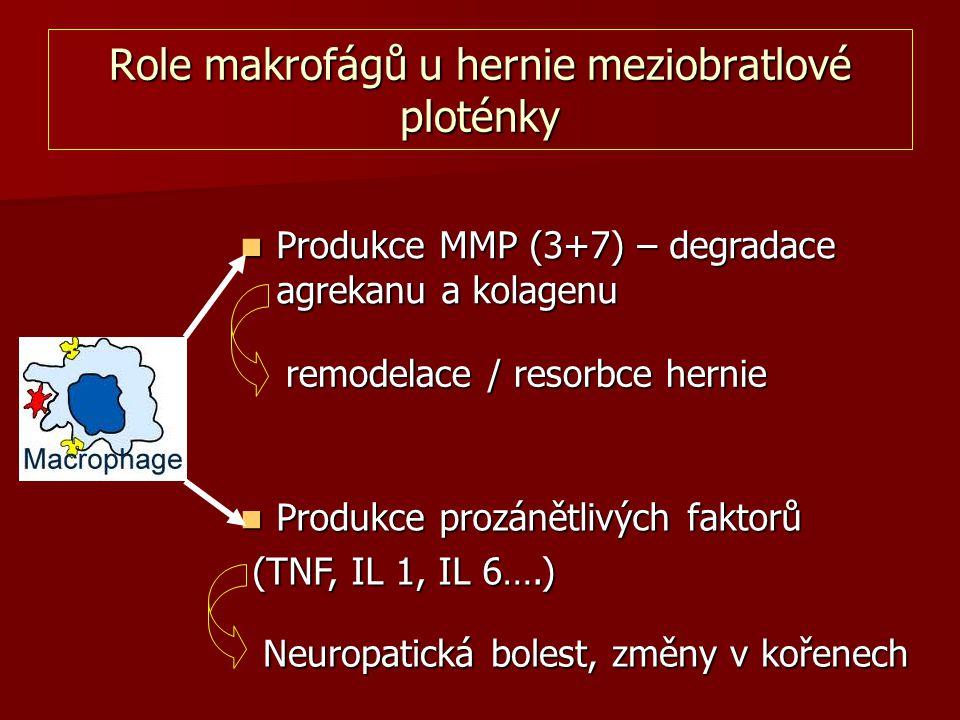 Role makrofágů u hernie meziobratlové ploténky Produkce MMP (3+7) – degradace agrekanu a kolagenu Produkce MMP (3+7) – degradace agrekanu a kolagenu P