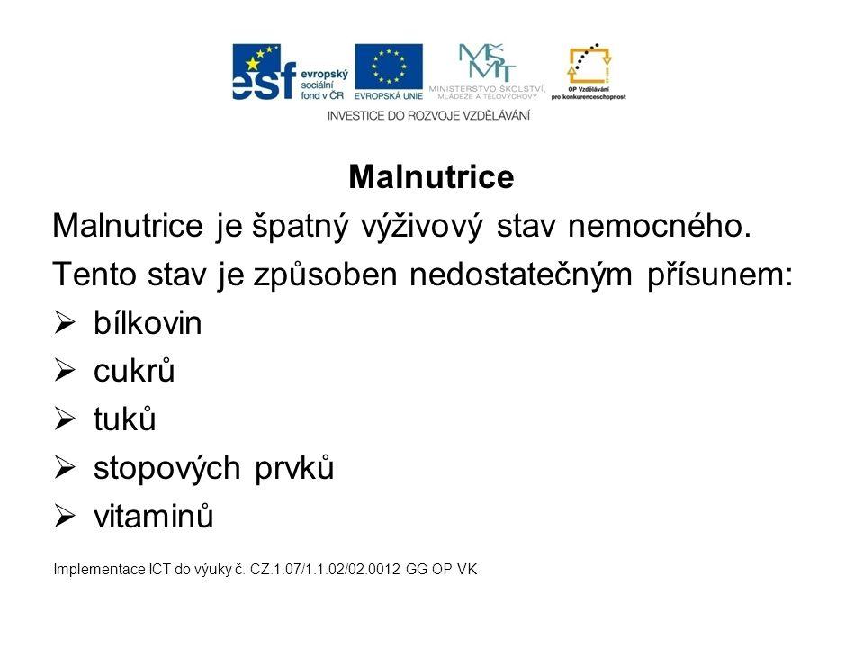 Malnutrice Malnutrice je špatný výživový stav nemocného. Tento stav je způsoben nedostatečným přísunem:  bílkovin  cukrů  tuků  stopových prvků 