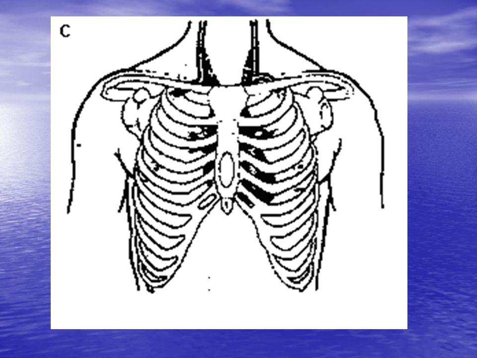 Otevřená poranění Se projevují stavem = pneumotorax Se projevují stavem = pneumotorax To je situace, při níž dojde k porušení stěny hrudní a ……… hrudní a ……… Pneumotorax rozdělujeme na: otevřenýzáklopkový a zavřený.