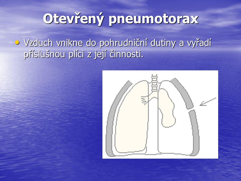 Otevřený pneumotorax Vzduch vnikne do pohrudniční dutiny a vyřadí příslušnou plíci z její činnosti. Vzduch vnikne do pohrudniční dutiny a vyřadí přísl