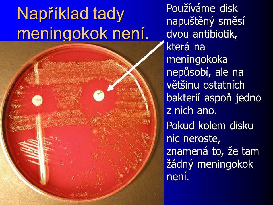Například tady meningokok není. Používáme disk napuštěný směsí dvou antibiotik, která na meningokoka nepůsobí, ale na většinu ostatních bakterií aspoň