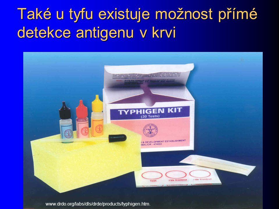Také u tyfu existuje možnost přímé detekce antigenu v krvi www.drdo.org/labs/dls/drde/products/typhigen.htm.