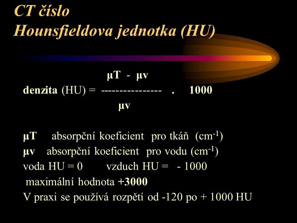 CT číslo Hounsfieldova jednotka (HU) μT - μv denzita (HU) = ----------------.
