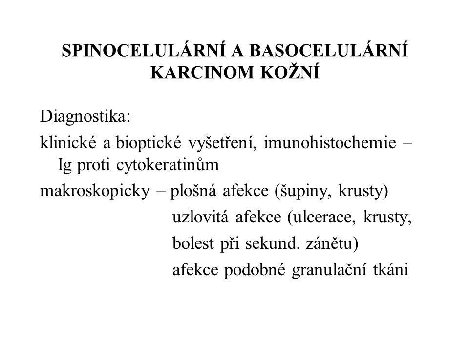 SPINOCELULÁRNÍ A BASOCELULÁRNÍ KARCINOM KOŽNÍ Basaliom – nejčastější, maximum na odhalené kůži, často mnohotně, nebolestivý, navalité okraje, perleťový lesk, prakticky nemetastazuje, lokální destrukce 80 % všech kožních nádorů Spinaliom – histol.