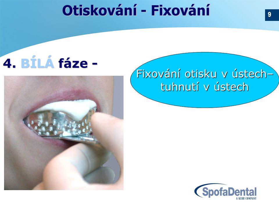 9 Fixování otisku v ústech– tuhnutí v ústech Otiskování - Fixování 4. BÍLÁ fáze -