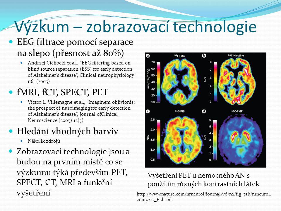"""Výzkum – zobrazovací technologie EEG filtrace pomocí separace na slepo (přesnost až 80%) Andrzej Cichocki et al., """"EEG filtering based on blind source"""