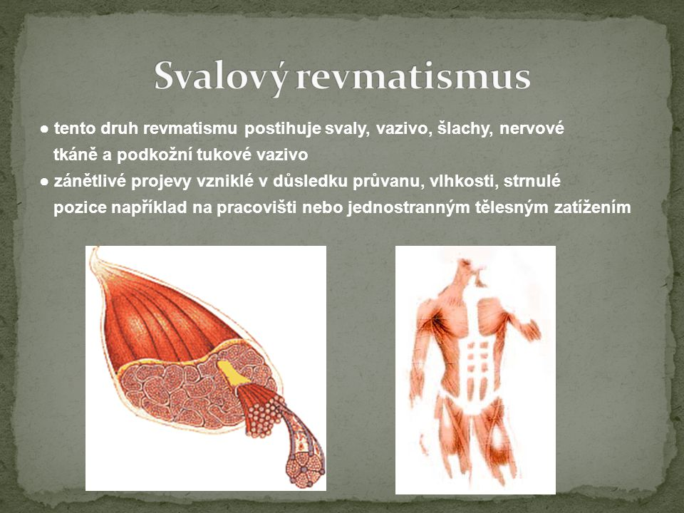 ● tento druh revmatismu postihuje svaly, vazivo, šlachy, nervové tkáně a podkožní tukové vazivo ● zánětlivé projevy vzniklé v důsledku průvanu, vlhkosti, strnulé pozice například na pracovišti nebo jednostranným tělesným zatížením