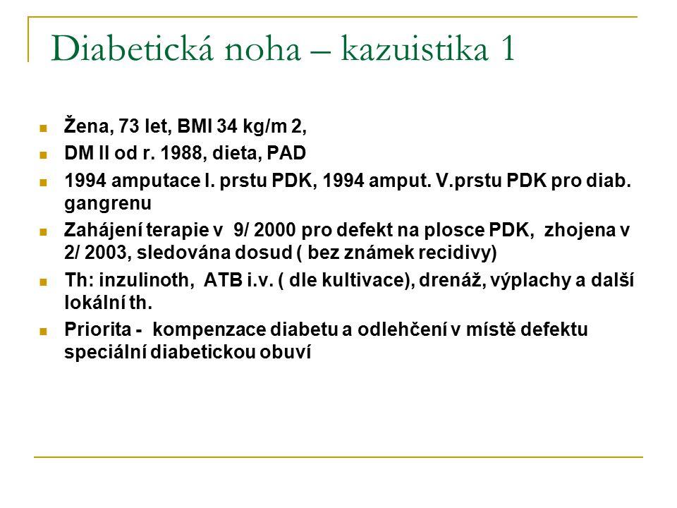 Diabetická noha – kazuistika 1 Žena, 73 let, BMI 34 kg/m 2, DM II od r. 1988, dieta, PAD 1994 amputace I. prstu PDK, 1994 amput. V.prstu PDK pro diab.