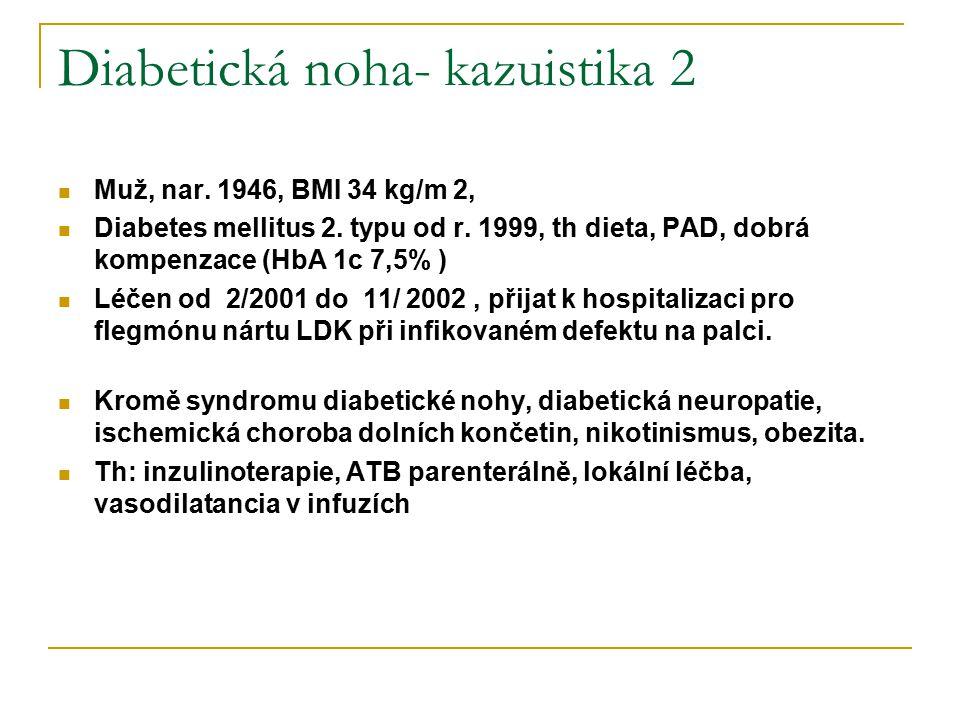 Diabetická noha- kazuistika 2 Muž, nar. 1946, BMI 34 kg/m 2, Diabetes mellitus 2. typu od r. 1999, th dieta, PAD, dobrá kompenzace (HbA 1c 7,5% ) Léče