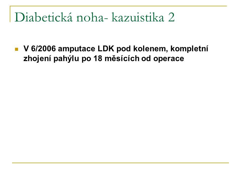 Diabetická noha- kazuistika 2 V 6/2006 amputace LDK pod kolenem, kompletní zhojení pahýlu po 18 měsících od operace