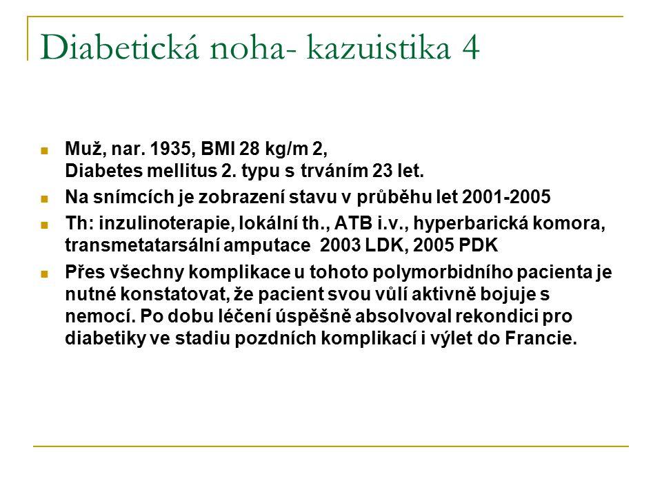 Diabetická noha- kazuistika 4 Muž, nar. 1935, BMI 28 kg/m 2, Diabetes mellitus 2. typu s trváním 23 let. Na snímcích je zobrazení stavu v průběhu let