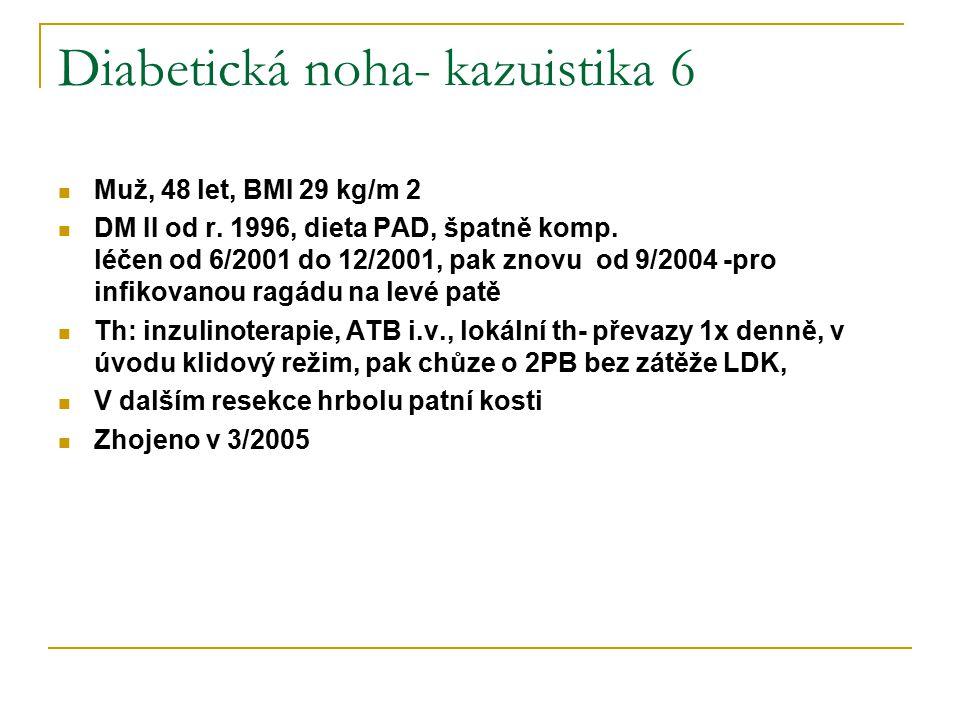 Diabetická noha- kazuistika 6 Muž, 48 let, BMI 29 kg/m 2 DM II od r. 1996, dieta PAD, špatně komp. léčen od 6/2001 do 12/2001, pak znovu od 9/2004 -pr