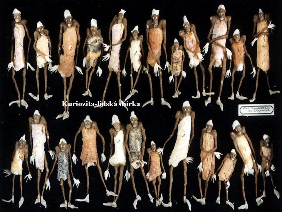 Kuriozita-lidská sbírka