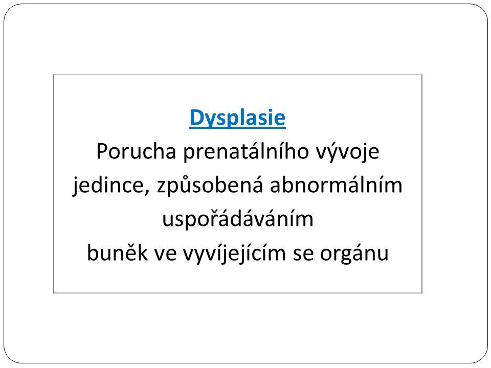 Dysplasie Porucha prenatálního vývoje jedince, způsobená abnormálním uspořádáváním buněk ve vyvíjejícím se orgánu