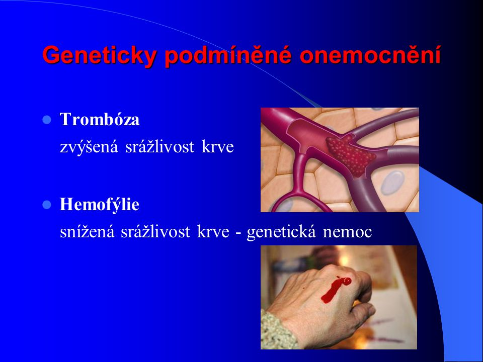 Geneticky podmíněné onemocnění Trombóza zvýšená srážlivost krve Hemofýlie snížená srážlivost krve - genetická nemoc