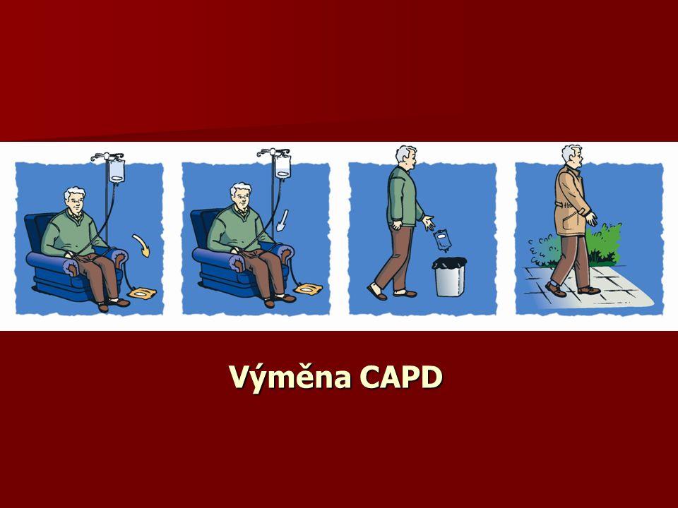 Výměna CAPD