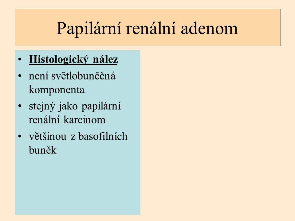Histologický nález není svĕtlobunĕčná komponenta stejný jako papilární renální karcinom vĕtšinou z basofilních bunĕk Papilární renální adenom