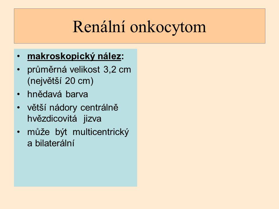 Renální onkocytom makroskopický nález: průměrná velikost 3,2 cm (největší 20 cm) hnědavá barva větší nádory centrálně hvězdicovitá jizva může být mult