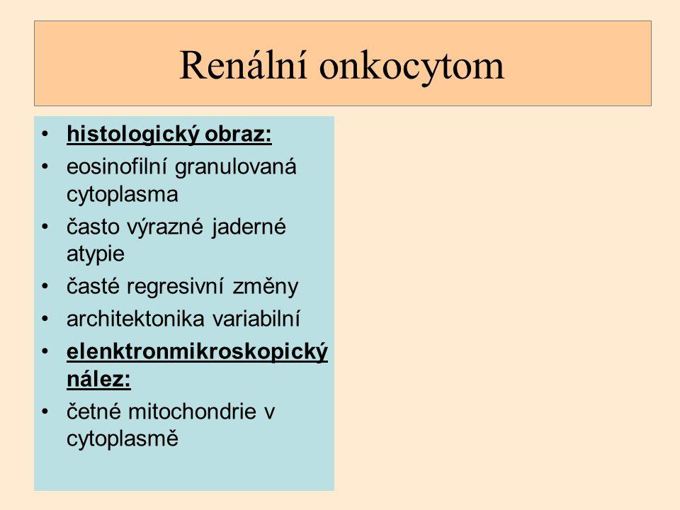 Renální onkocytom histologický obraz: eosinofilní granulovaná cytoplasma často výrazné jaderné atypie časté regresivní změny architektonika variabilní