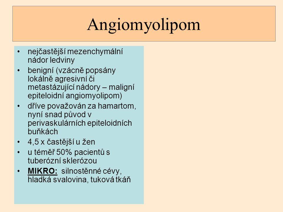 Angiomyolipom nejčastější mezenchymální nádor ledviny benigní (vzácně popsány lokálně agresivní či metastázující nádory – maligní epiteloidní angiomyo