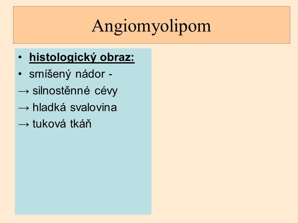 Angiomyolipom histologický obraz: smíšený nádor - → silnostěnné cévy → hladká svalovina → tuková tkáň