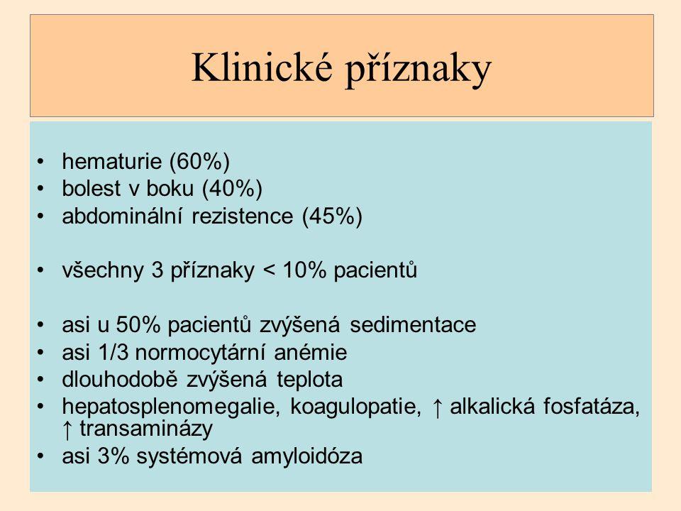 Klinické příznaky hematurie (60%) bolest v boku (40%) abdominální rezistence (45%) všechny 3 příznaky < 10% pacientů asi u 50% pacientů zvýšená sedime