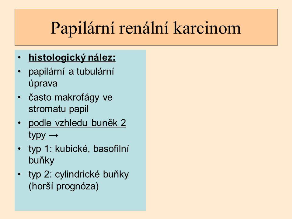 histologický nález: papilární a tubulární úprava často makrofágy ve stromatu papil podle vzhledu buněk 2 typy → typ 1: kubické, basofilní buňky typ 2: