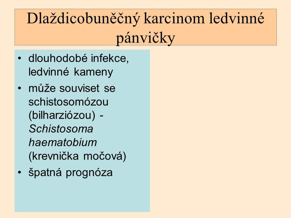 Dlaždicobuněčný karcinom ledvinné pánvičky dlouhodobé infekce, ledvinné kameny může souviset se schistosomózou (bilharziózou) - Schistosoma haematobiu
