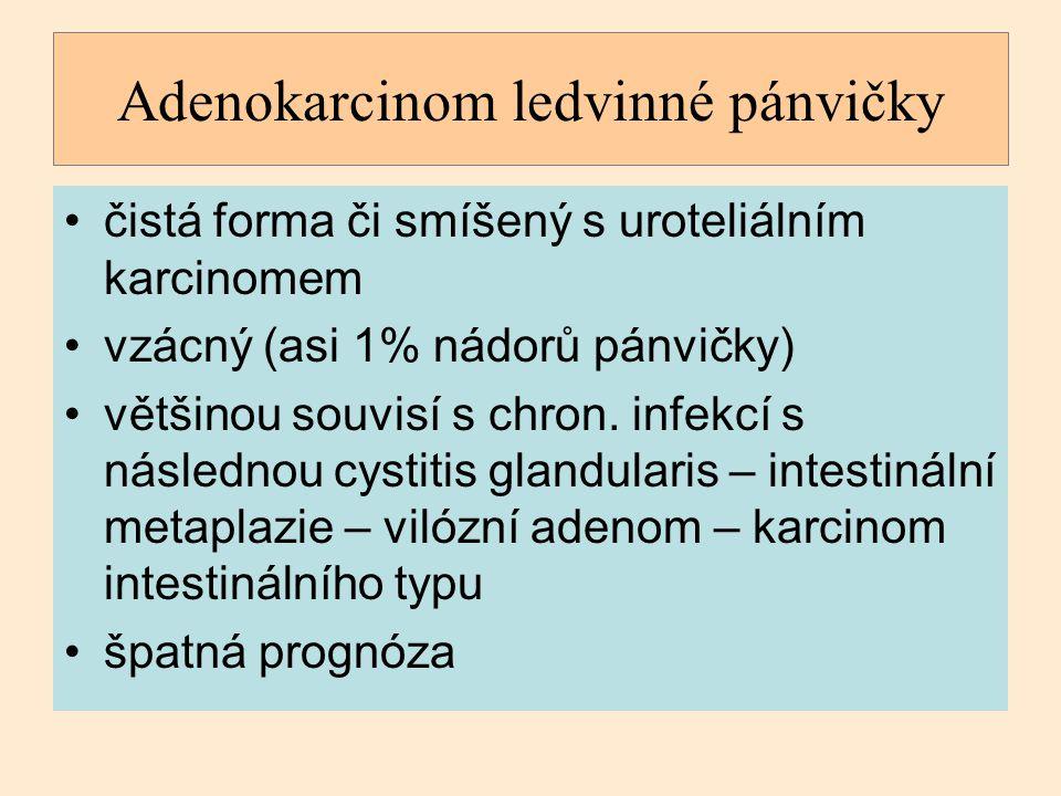 Adenokarcinom ledvinné pánvičky čistá forma či smíšený s uroteliálním karcinomem vzácný (asi 1% nádorů pánvičky) většinou souvisí s chron. infekcí s n