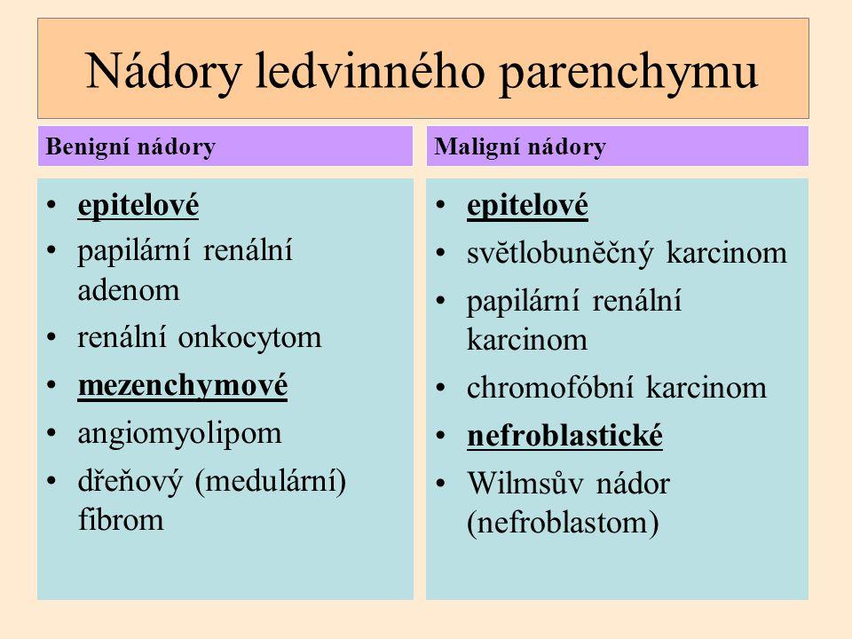 Svĕtlobunĕčný karcinom dříve Grawitzův karcinom (hypernefrom) synonyma: karcinom ledviny ze světlých (jasných) buněk konvenční karcinom ledviny 65-75% všech karcinomů ledviny vznik z buněk ledvinných kanálků sporadický i familiární výskyt  pacienti s Von Hippel- Lindauovým syndromem (AD onemocnění s predispozicí k různým nádorům) – vrozená mutace VHL genu na chromozómu 3p25