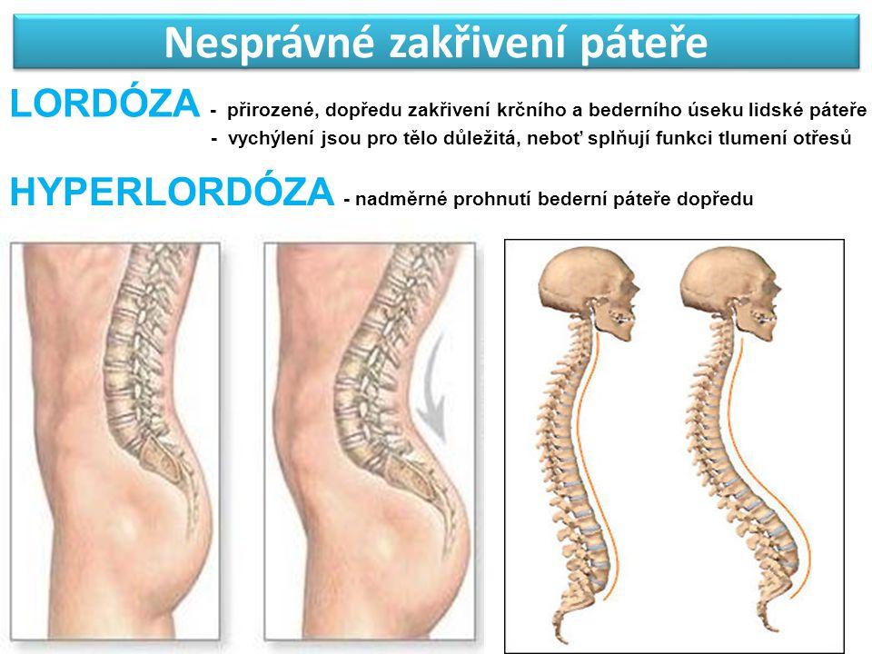 Nesprávné zakřivení páteře LORDÓZA - přirozené, dopředu zakřivení krčního a bederního úseku lidské páteře - vychýlení jsou pro tělo důležitá, neboť sp
