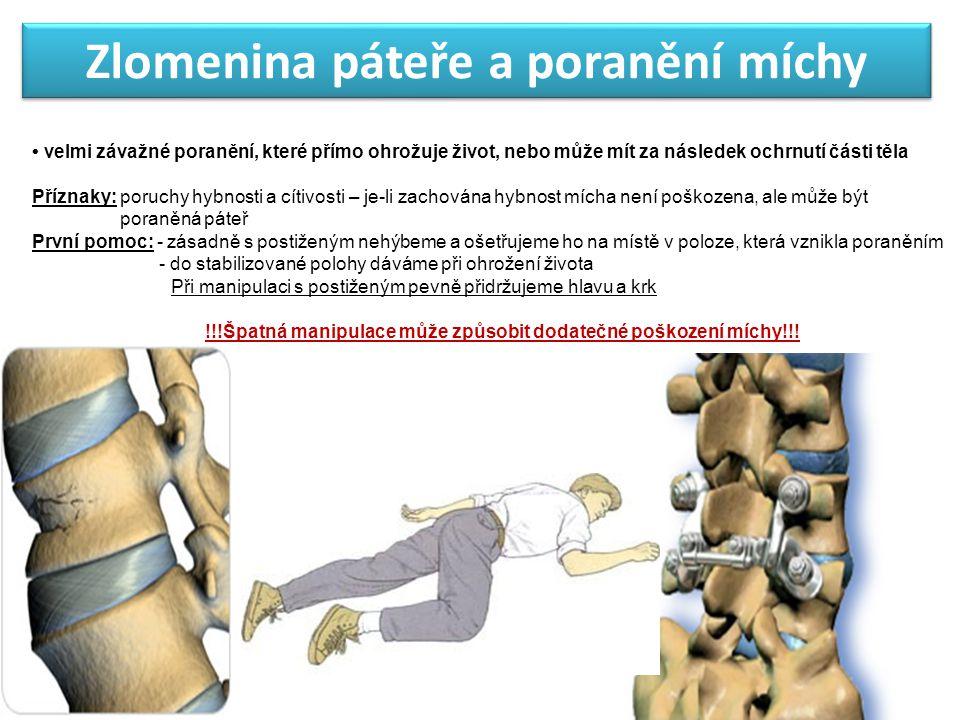 Zlomenina páteře a poranění míchy velmi závažné poranění, které přímo ohrožuje život, nebo může mít za následek ochrnutí části těla Příznaky: poruchy